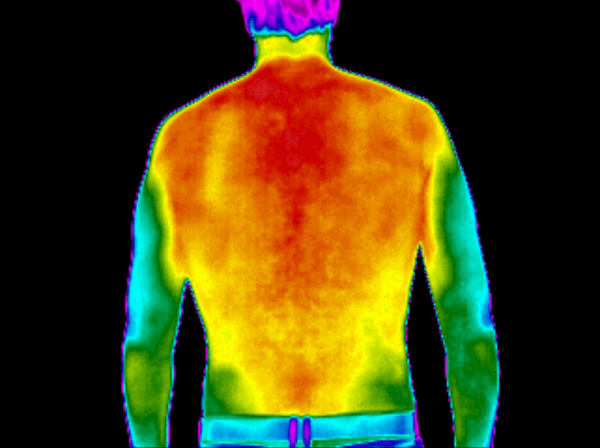 Posture Thermography