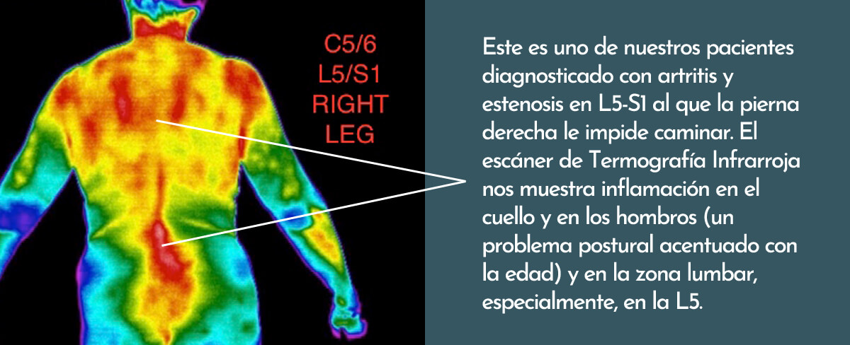L5S1 Thermography