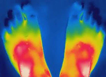 Thermography Feet