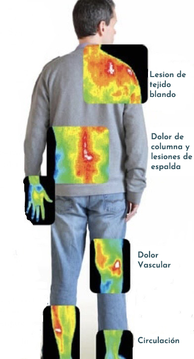Thermography Body